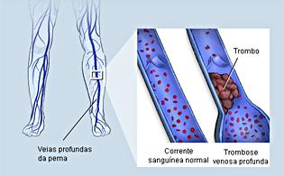 Trombosis venosa profunda causas